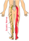 Sciatica can be helped by a chiropractor
