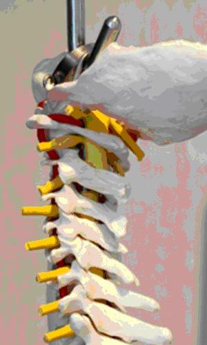 Photo of spine