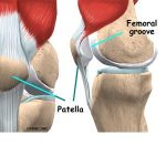 Tennis Can Often Lead To Knee Problems - Wimbledon Shows Us Just How Many Players Experience Knee Pain!
