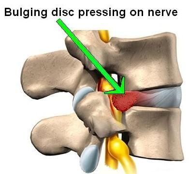 You Tell Me I Have A Disc Problem – Don't I Need an MRI for That??