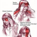 Headaches Take Many Different Forms - Chiropractors at The Avenue Clinic Explain The Difference