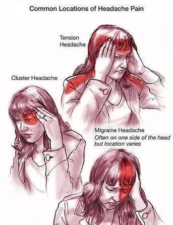 Headaches-pic-for-post