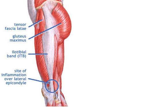 iliacus muscle pain