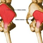 Gluteus Medius Muscle – Chiropractors in Southampton Give You The Answer!