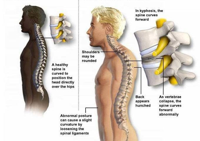 What Difference Does Posture Really Make .... The Pictures Tell the Story