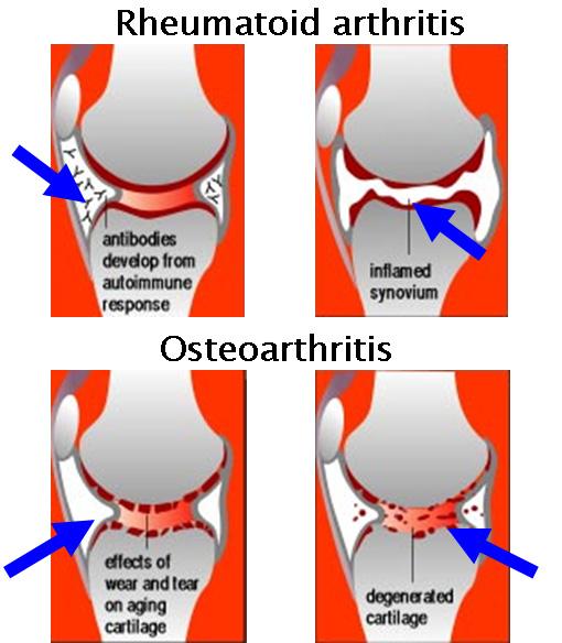 Osteoarthritis Vs Rheumatoid Arthritis Hands