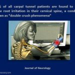 Carpal Tunnel Syndrome - How We Can Help