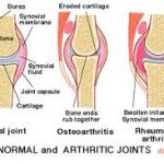 When Does Joint Pain Mean You Need an Operation? Chiropractors at The Avenue Clinic in Southampton Discuss What You Should Consider.