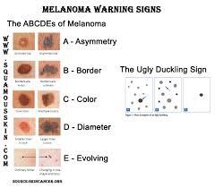 melanoma images