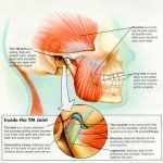 TMJ Problems – What Does This Mean? Chiropractors in Southampton at The Avenue Clinic Explain